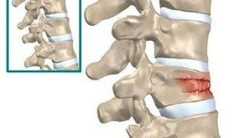 Что такое гемангиома позвоночника и как ее лечить?