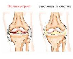 Сравнение больного и нормального сустава