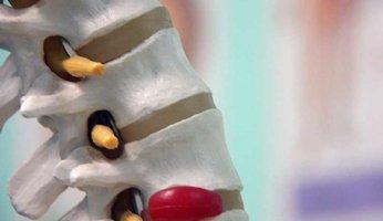Грыжа межпозвоночного диска поясничного отдела: ее симптомы и лечение