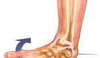 Если произошло растяжение связок ноги, что…