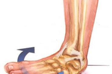 Если произошло растяжение связок ноги, что делать?