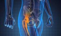 Почему щелкает тазобедренный сустав?