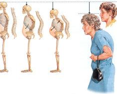 Изменение скелета человека