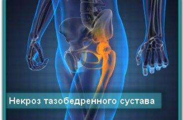 Чем опасен некроз тазобедренного и коленного суставов?