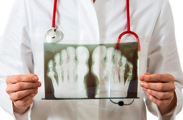 Рентген ног с тофусами