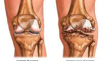 Воспаление суставов или артрит