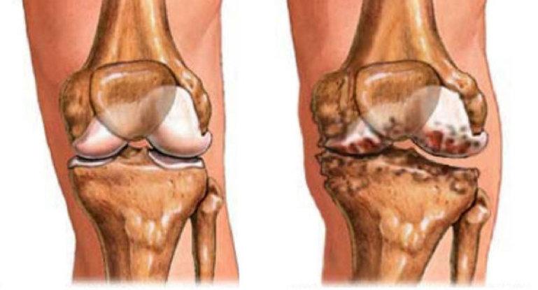 Воспаление суставов или артрит — как определить и победить недуг?