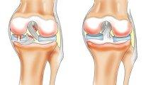 Какими лекарствами можно лечить артрит…