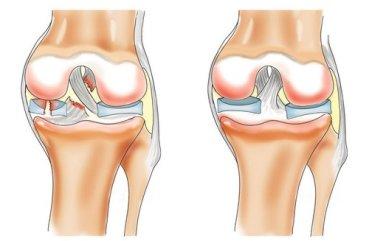 Какими таблетками лечить коленный сустав травмы суставов связок