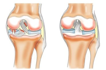 Какими лекарствами можно лечить артрит коленного сустава?