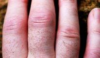 Что делать, если на пальцах рук опухают…