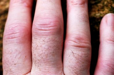 Что делать, если на пальцах рук опухают суставы?