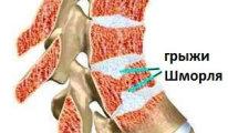Симптомы и разновидности узлов Шморля в…