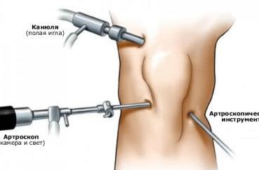 Какие операции делают на мениске коленного сустава?