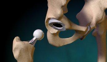 Как проходит операция по эндопротезированию тазобедренного сустава?