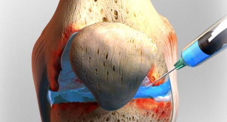 Лечение артроза мелких суставов кистей рук причины и симптомы заболевания