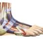 Лечим боли в голеностопном суставе при ходьбе