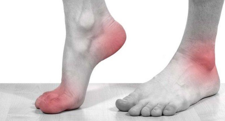 Методы лечения синовита и теносиновита голеностопа