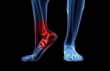 Артроз голеностопного сустава: симптомы и лечение в домашних ...