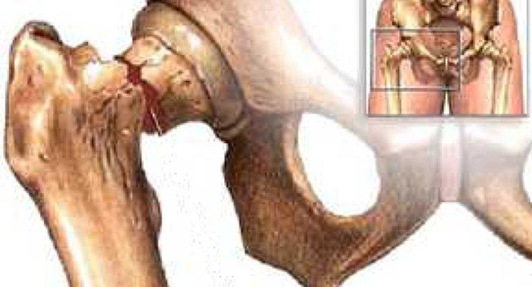 Диагностика и лечение остеопороза тазобедренного сустава