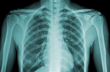 Рентген исследование позвоночника грудного отдела