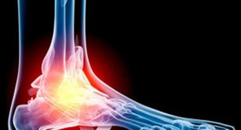 Какими препаратами можно снять боль при артрозе ног?