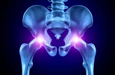 Когда появляются ядра окостенения тазобедренных суставов у…