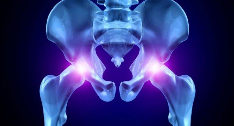 В тазобедренных суставах нет ядра чем это