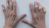 Как диагностировать стадии ревматоидного…