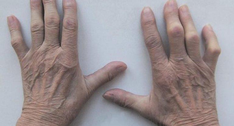 Как диагностировать стадии ревматоидного артрита?