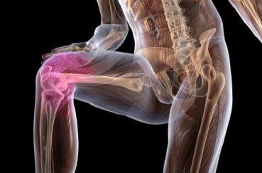 Симптомы и лечение ДОА коленного сустава