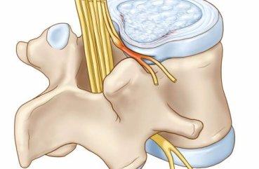 Обнаружили большую доброкачественную опухоль-мангиома на тазобедренном суставе после ренг причины возникновения воспаления суставов