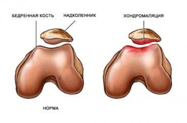 Как диагностировать и лечить хондромаляцию сустава колена?