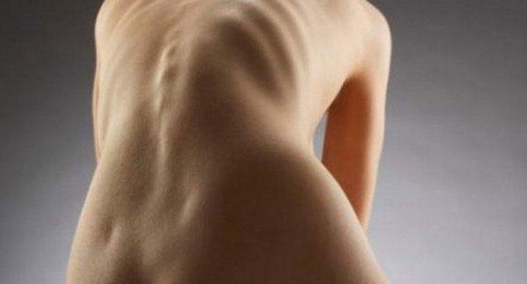 Лечение сколиоза грудного отдела позвоночника