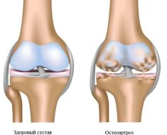 Пораженный остеопорозом хрящ