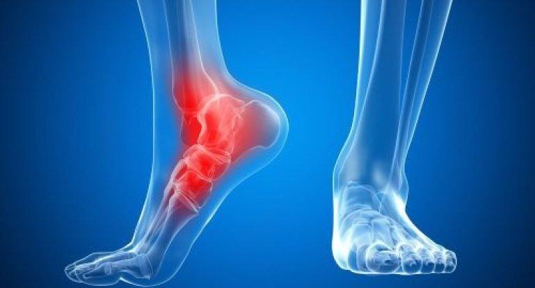 Симптомы и способы лечения артрита голеностопного сустава
