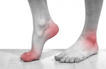 Боремся с артрозом голеностопного сустава