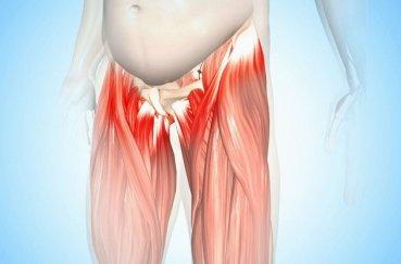 Особенности появления и лечения тендиноза тазобедренного сустава