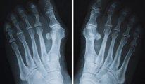 Как и чем лечить артроз пальцев ног:…