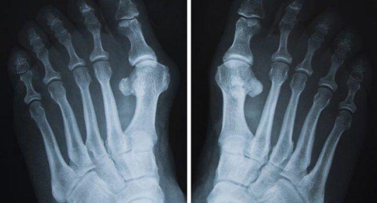 Как и чем лечить артроз пальцев ног: симптомы и лечение