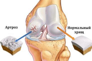 Почему возникает остеоартроз коленного сустава?