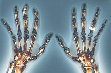 Как побороть серонегативный ревматоидный артрит?