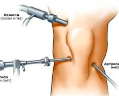Процесс артроскопии