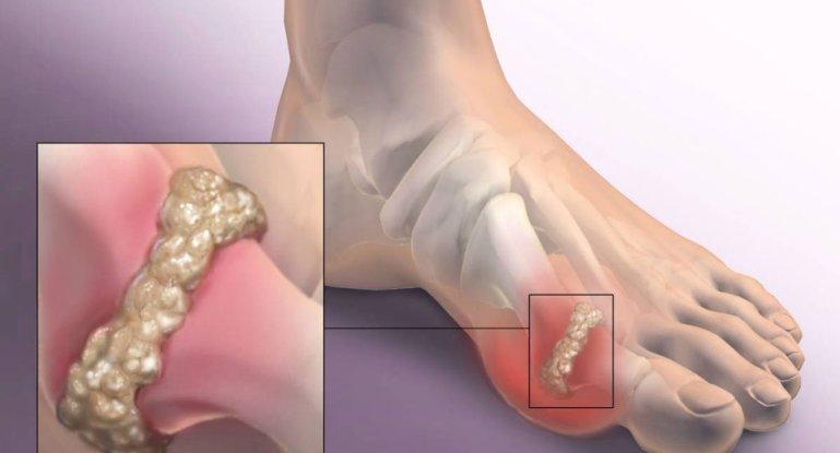 Как бороться с артрозом пальцев ног?
