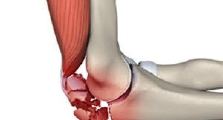 Как вылечить перелом головки лучевой кости в локте?