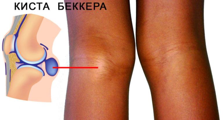 Как развивается киста Бейкера в коленном суставе?