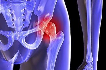 Что собой являет двусторонний коксартроз тазобедренного сустава?