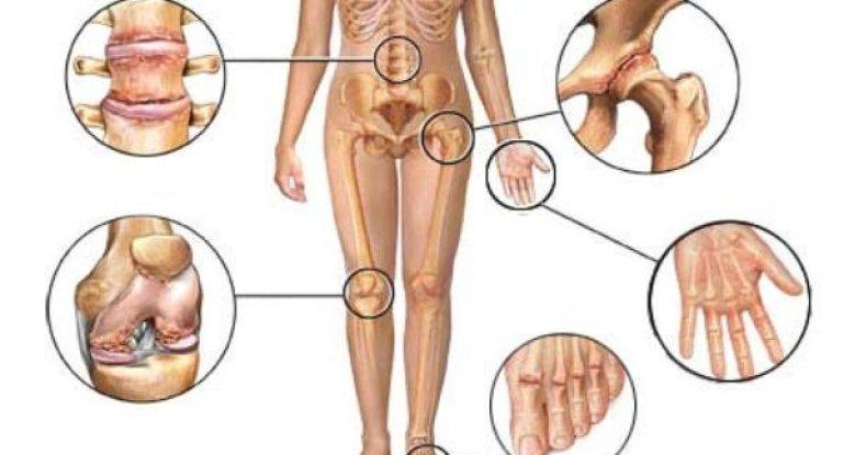 Какие лекарства применять для лечения артрита?