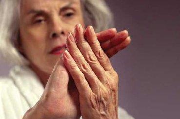 Лечим артроз пальцев рук традиционной и народной медициной