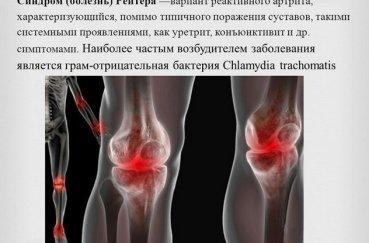 Синдром Рейтера в колене
